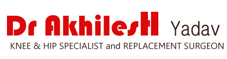 Dr. Akhilesh Yadav Knee & Hip Specialist and Replacement Surgeon