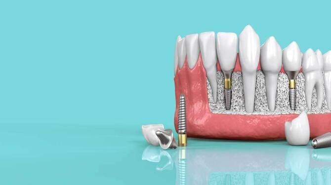 Sri Sakthi Dental Clinic