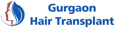 Gurgaon Hair Transplant