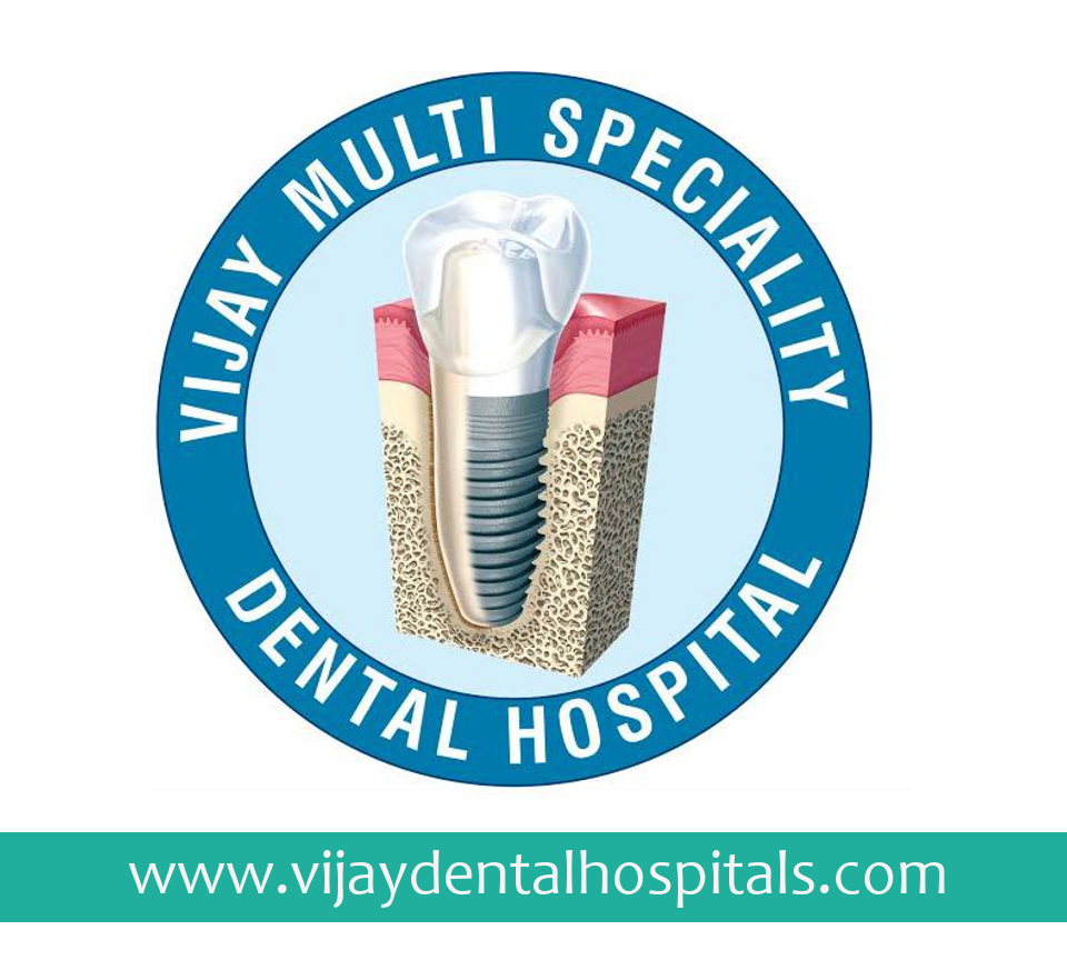 Dental implants | implant | vijay dental clinic | Dental services