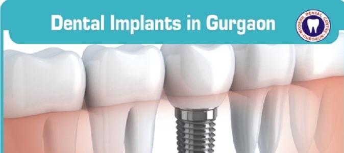 Modern Dental Centre - Dental Clinic Gurgaon