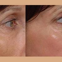 Arkansas Laser & Skin Care
