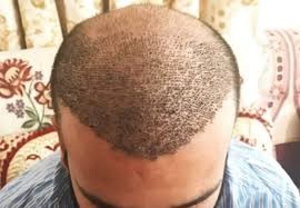 SNCC Hair Transplant