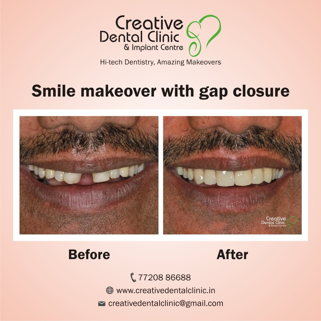 Creative Dental Clinic & Implant Centre