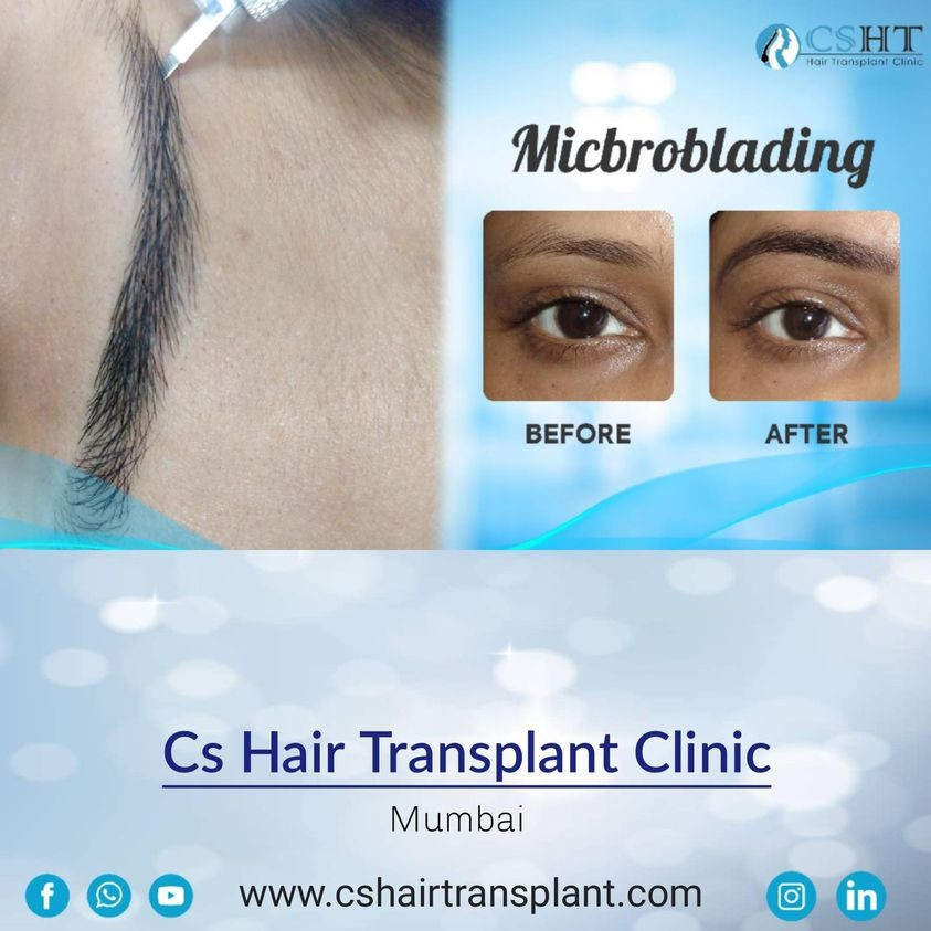 CS Hair Transplant Clinic
