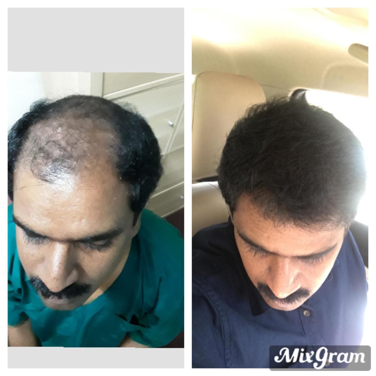 Dr kumars hair transplant centre