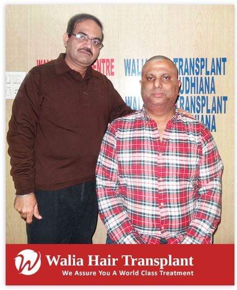 Walia Hair Transplant