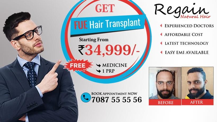 Hair Transplant in Allahabad - Hair Doctors