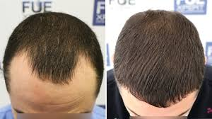 La Densitae Hair Transplant Center