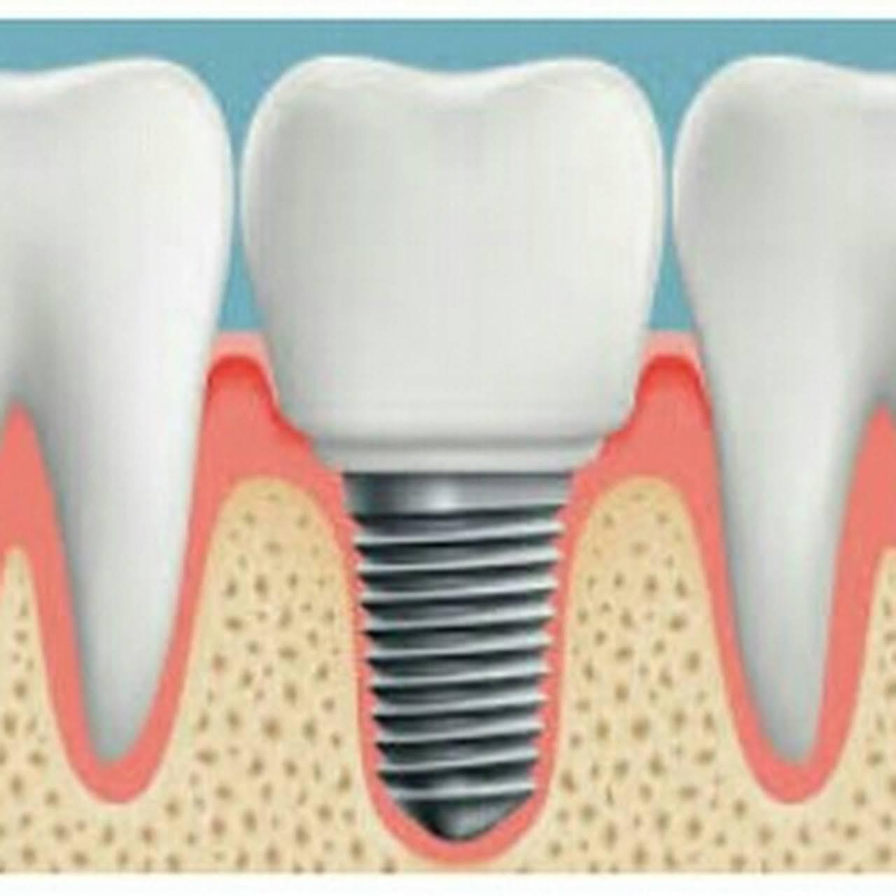 Dr. Desai's Multispeciality Dental Clinic & Implant Centre