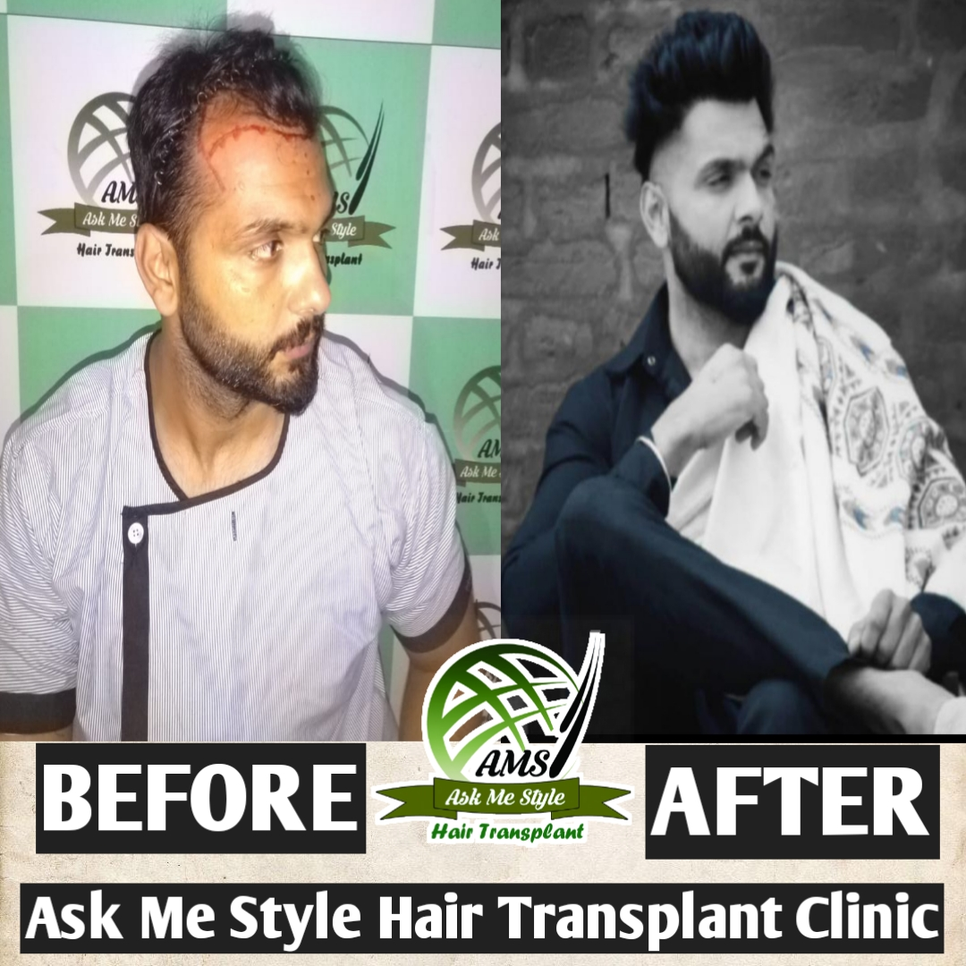 Ask Me Style Hair Transplant Clinic
