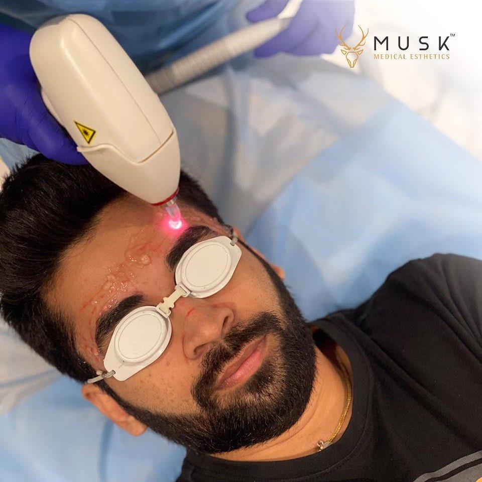 Musk Clinic - Hair Transplant Clinic
