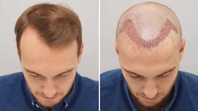 Udyaan Hair Transplant