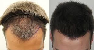Sparsh Skin Hair & Laser Clinic