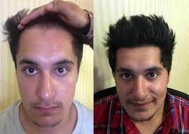 Hair Transplant in Chandigarh - Dr. Rahul Goyal