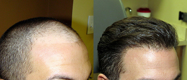 Athena Hair Now - Best Hair Transplant in Chandigarh, Mohali | Fue Cost
