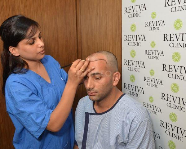 Dr Kalia Best Hair Transplant in Chandigarh /Fue Hair Transplant Clinic