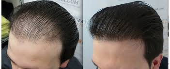 Reviva Clinic - Hair Transplant in India