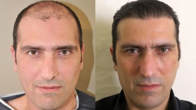 Kesh Clinic - Hair Transplant in Chandigarh