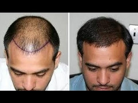Dr Madhu's Advanced Hair Transplant