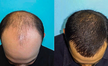Redefine Plastic Surgery and Hair Transplant