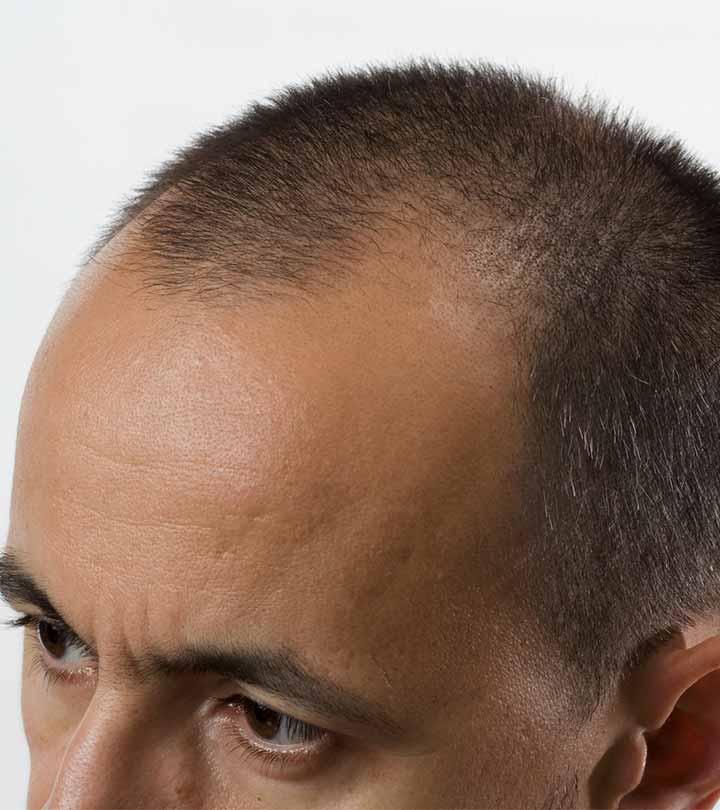 Dr. Khan's Fue Hair Transplant