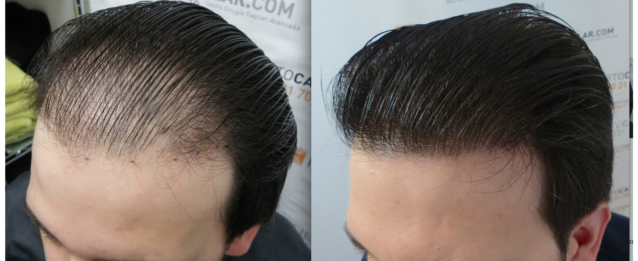 Darling Roots Advanced Fue Hair Transplant