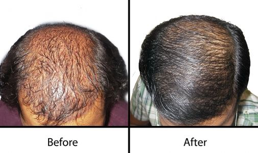Radiance Advanced Hair Transplant