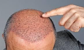 Atri Hair Transplant