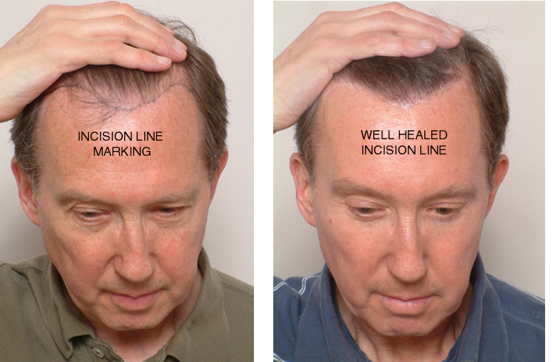 The Hairsutra - Hair Transplant and Skin Care Clinic Mangalore