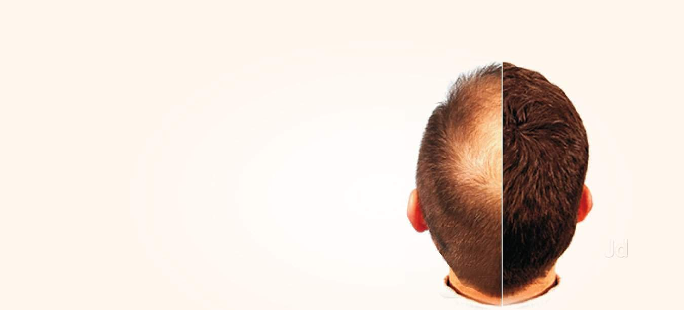 Hi-tech Skin Cosmetology Clinic And Hair Transplant Centre