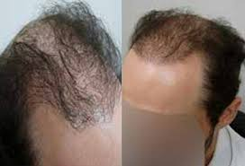 Hair Transplant Hospital in Haryana,life care Hospital in Rohtak, Skin Treatment Hospital in Rohtak