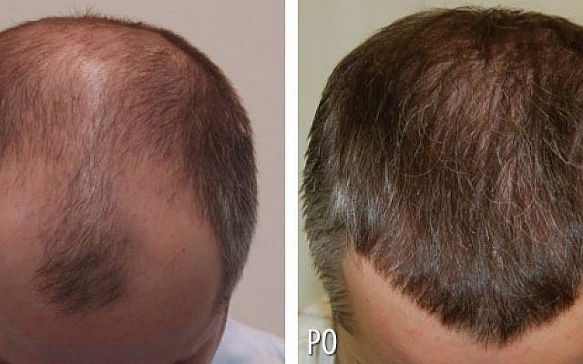 Nandal Hospital - Best Maternity Hospital, Hair Transplant, Skin Center in Rohtak
