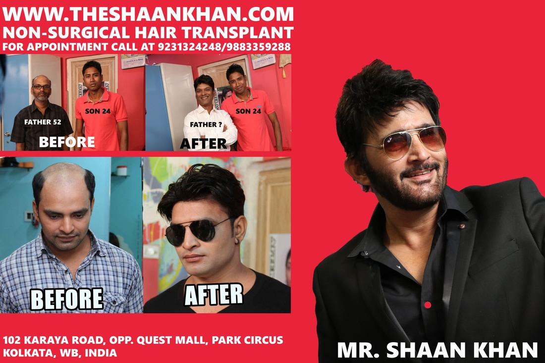 Shaan Khan Hair Transplant