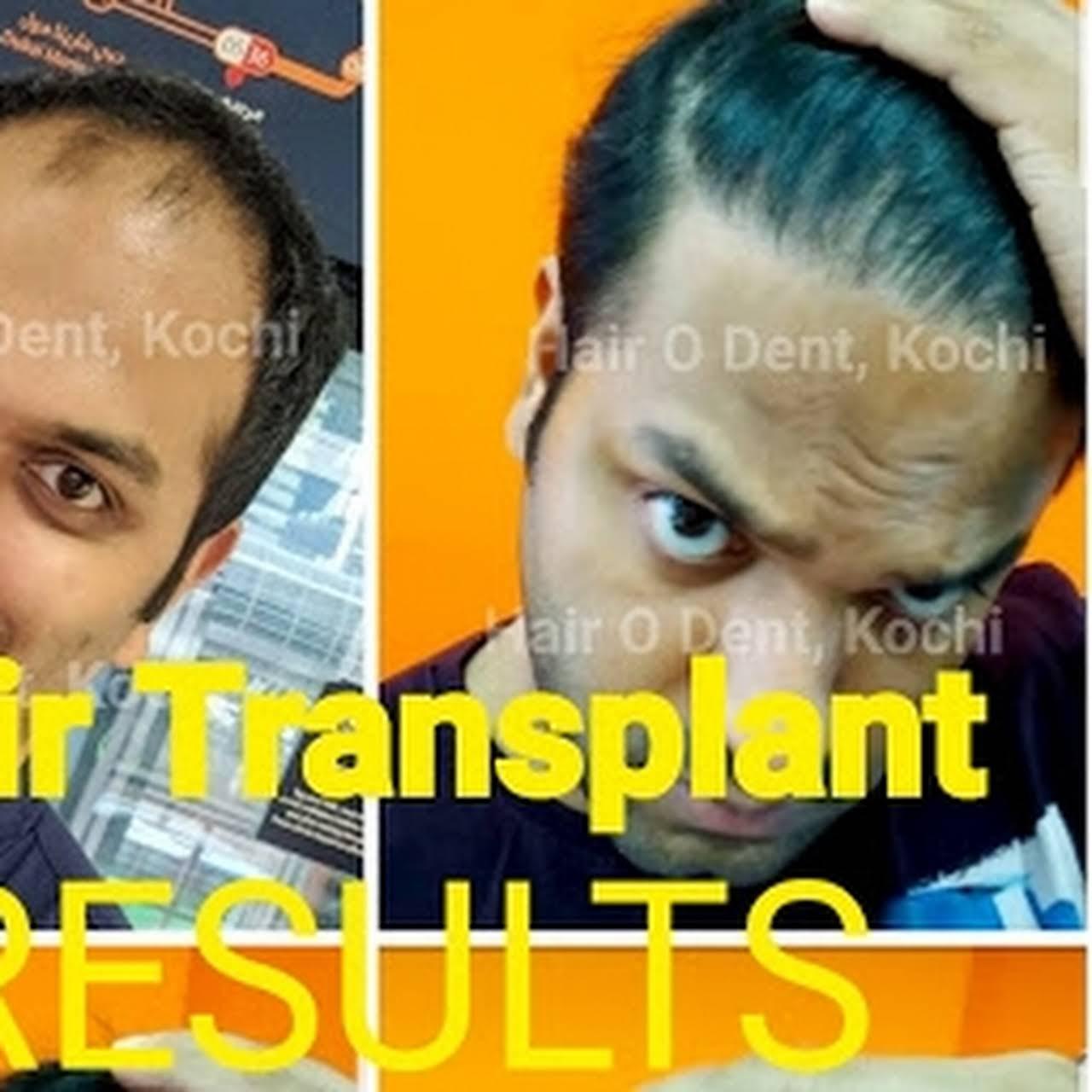 Hair O Dent - FUE Hair Transplant